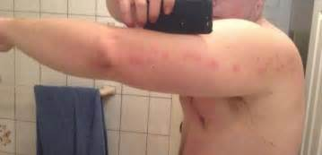 inflammation of skin caused by an allergy taking adderall xr picture 2