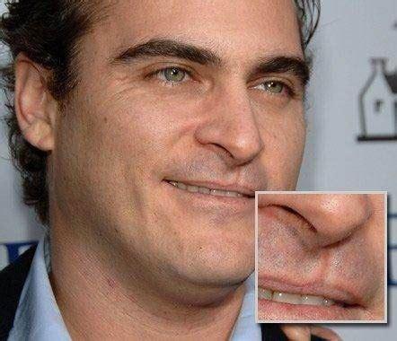 Joaquin phoenix lip scar picture 1
