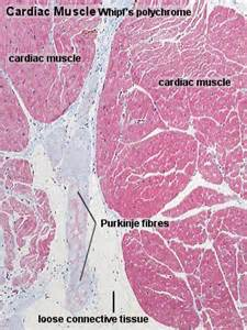 centimeter thickening of heart muscle picture 13