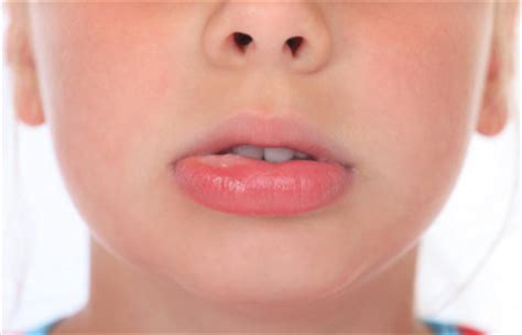 tingling numb lips picture 2