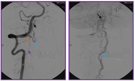 fistula vascular bladder picture 11