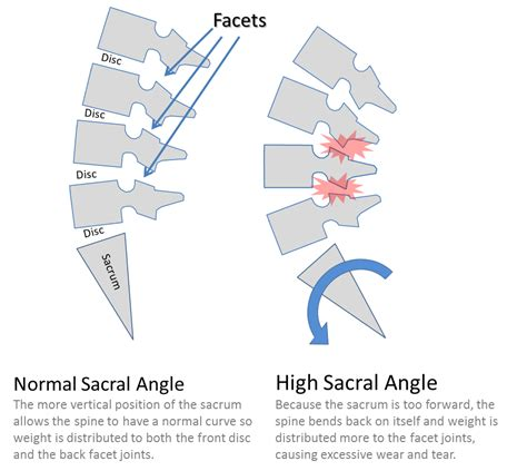 facet joint hypertrophy picture 11