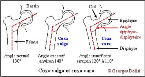 coxa vulga of hip joint picture 9