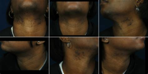 africa american lazer hair removal, houston, tx picture 9