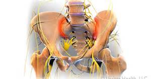 si joint arthritis picture 6