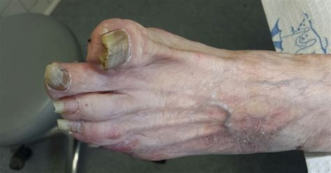 toenail fungus related to diabetes picture 6