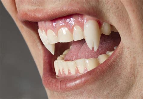custom teeth picture 1