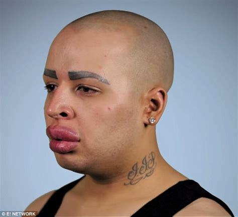 humongous lips picture 13