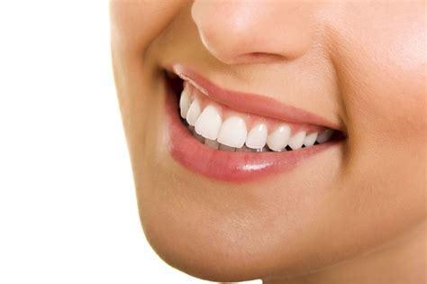 smile teeth picture 7