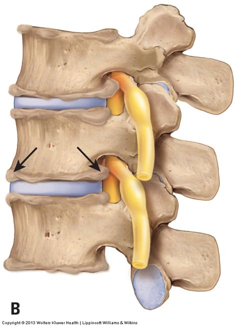 degenrative joint diease in the spine picture 5