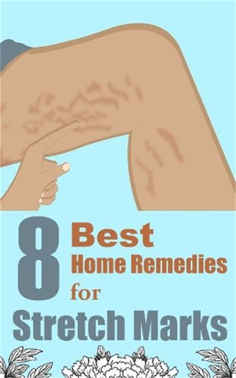 home remedies for stretch marks picture 6