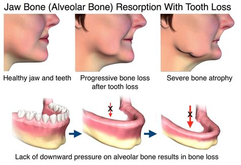 coffee and tooth bone loss picture 1