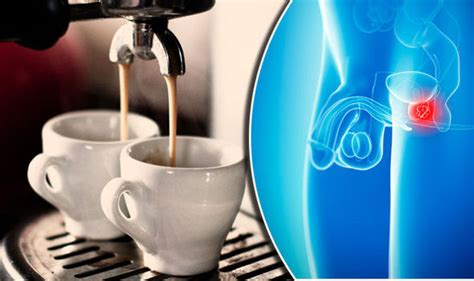 Caffeine and prostate picture 15