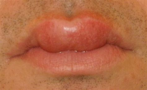 fordyce spots on lips burning picture 19