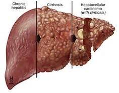 repair liver enzymes picture 6