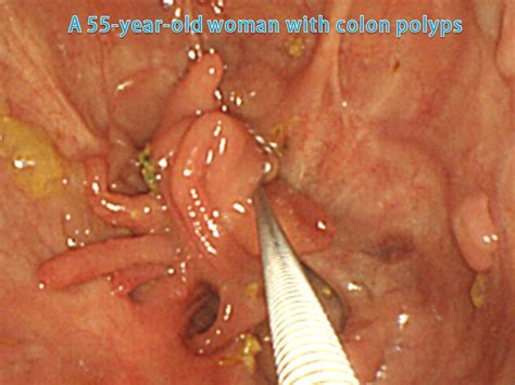 colon polyps and yeast picture 11
