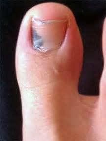 toenail fungus pictures black toenails picture 3