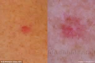 skin cancer burst picture 5
