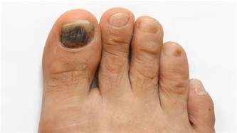 toe nail fungus dr. picture 10