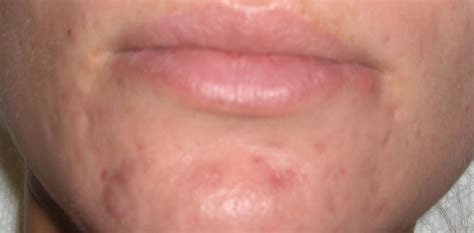 acne scar incision picture 6