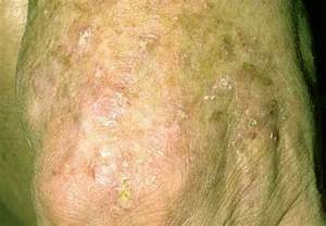 skin cancer attenant caratosis picture 2