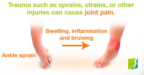 can seroxat cause joint pain picture 1