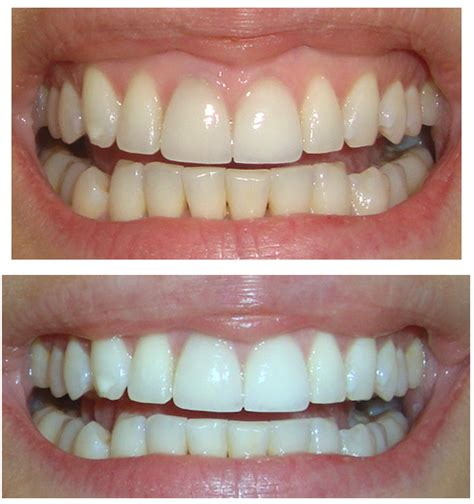 whiten teeth in 90 minutes without bleach picture 5