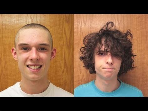 hair growth pictures time lapse picture 14