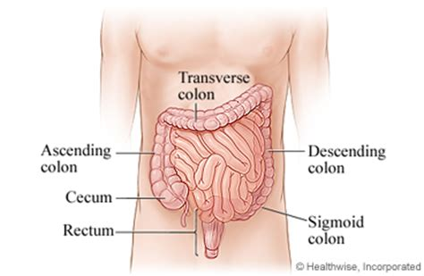 what happens after colon cancer resection picture 9