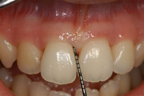 h whitening for bridges picture 1