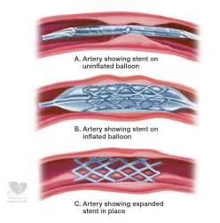 heart stents medications picture 3
