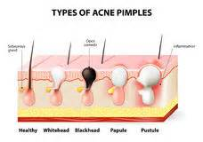 obagi cause acne picture 5