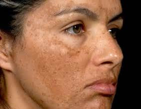 clear skin acne and laser center picture 6