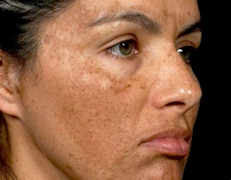 discoloration skin picture 1