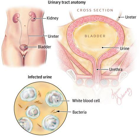 bladder infection in elderly older women picture 2