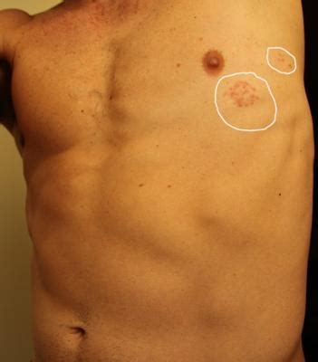 rash on stomach arms and back picture 2