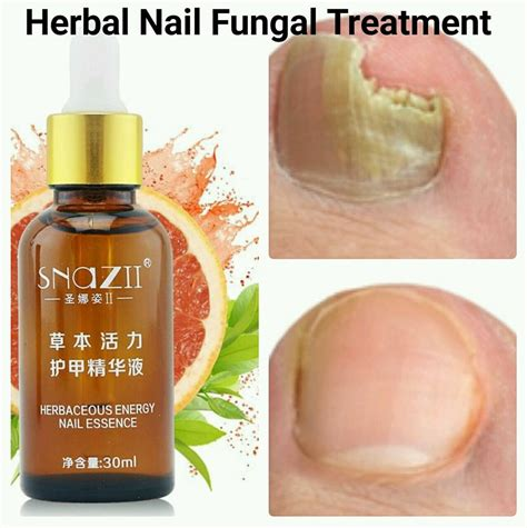 toenail fungus natural cure canada in stores picture 17