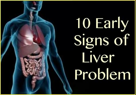 sign of liver problems picture 2