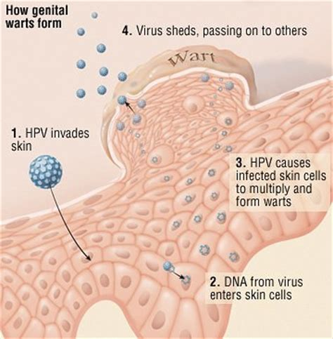 can alkalizing the body help with genital warts picture 1