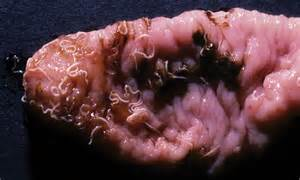 what do intestinal parasites and colon parasites look like picture 10