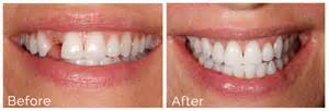 after radiation teeth implants picture 9