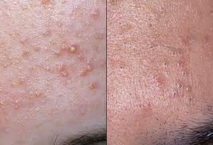 acne vs blackheads picture 2