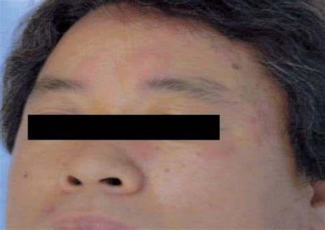 skin rash with swelling picture 10