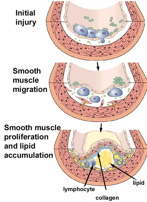 mouth yeast infect6ion picture 9