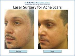 acne mark laser treatment picture 5
