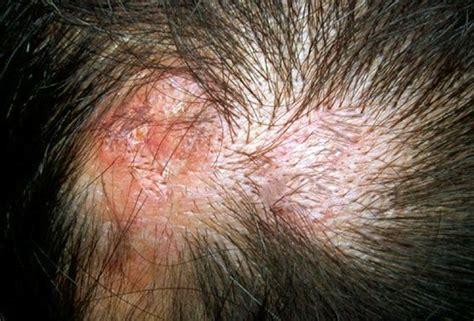 shingles fungal meningitis warts headaches picture 14