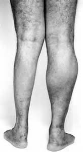 muscle in legs disease picture 5
