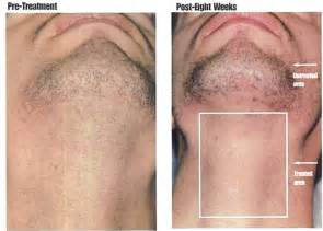 hair removal for men boils picture 15