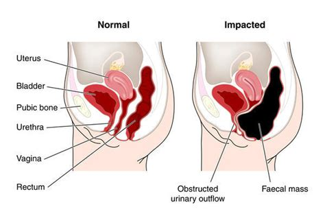 Prostate operation constipation picture 5