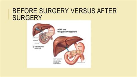 a diet after el surgery picture 14